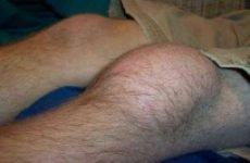 Розтягнення зв'язок колінного суглоба — симптоми і лікування, що робити якщо потягнула підколінне сухожилля і м'язи, зв'язки коліна