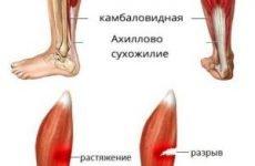 Розрив литкового м'яза — симптоми, лікування й терміни відновлення, як лікувати частковий розрив зв'язок та сухожилля