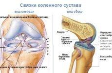 Розрив хрестоподібних зв'язок коліна — часткове і субтотальне (неповне) пошкодження хрестів колінного суглоба