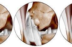 Розрив передньої хрестоподібної зв'язки колінного суглоба — лікування і симптоми ушкоджень, терапія лигаментоза