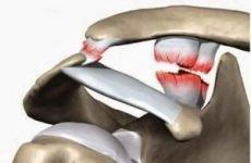 Розрив зв'язок плечового суглоба — лікування і скільки гоїться, симптоми надриву і порваних зв'язок плеча