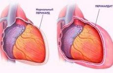 Симптоми і лікування перикардиту — запалення серцевої сумки
