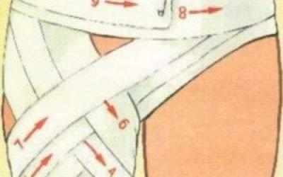 Запалення зв'язок кульшового суглоба — симптоми і лікування, ознаки розриву і розтягування зв'язкового апарату і м'язів
