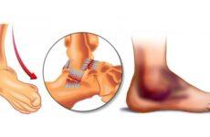 Вивих стопи — симптоми і лікування, ознаки перелому, тріщини і пошкодження гомілковостопного суглоба, перша допомога при травмі