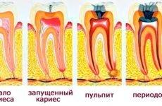 Чим відрізняється карієс від пульпіту?