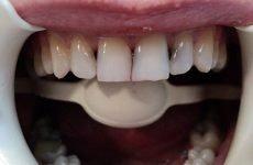 Що характерно для карієсу на передніх зубах і в чому його особливість?