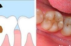 Що характерно для карієсу на зубі мудрості і як його лікувати?