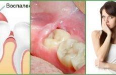 Що собою являє капюшон на зубі мудрості і чим він небезпечний?