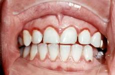 Що таке катаральний стоматит і що для нього характерно?