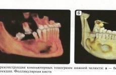 Що таке кіста щелепи і як її лікувати?