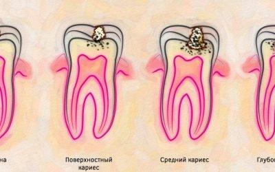 Особливості карієсу кореня зуба і його лікування