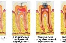 Що характерно для загострення хронічного періодонтиту?