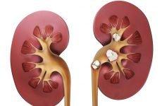 Фосфатні камені в нирках: симптоми, діагностика, лікування та профілактика
