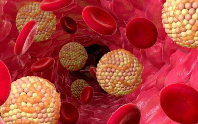 Клітковина від холестерину: як допомогти своєму організму