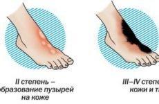 Що робити якщо обпалив руку окропом, праскою і гострим перцем, лікування сильного опіку пором у дитини