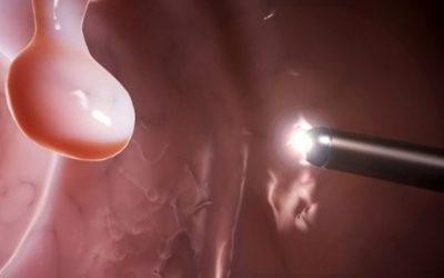 Причини появи поліпів у шлунку, їх види та способи видалення