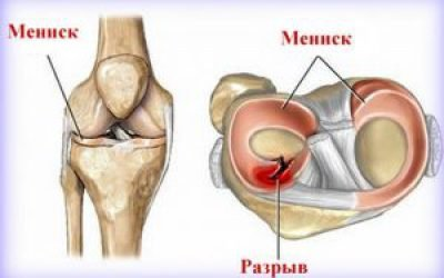 Розрив меніска колінного суглоба — лікування без операції, як лікувати надрив і тріщину меніска народними засобами