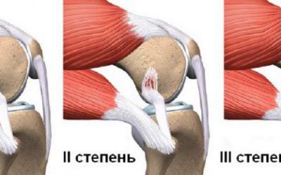 Розрив зв'язувань колінного суглоба — симптоми і лікування без операції, скільки гояться і що робити якщо порвані зв'язки коліна