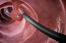 Способи видалення поліпів у шлунку і правила реабілітації після операції