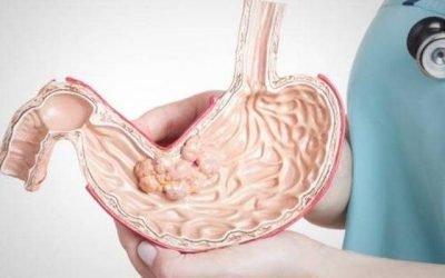 Перші симптоми плоскоклітинного раку шлунка та методика його лікування