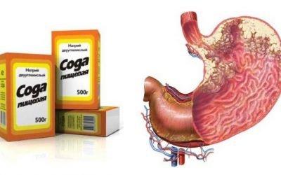 Чи допоможе в лікуванні раку шлунка харчова сода чи це міф?