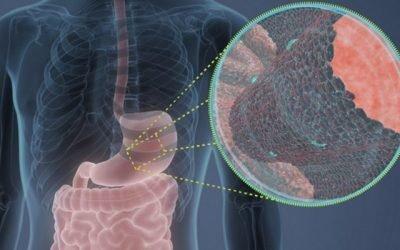 Тривалості життя при неоперабельному раку шлунка та способи його лікування