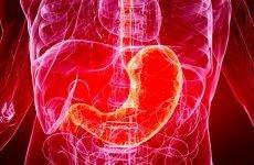 Симптоматика раку кардіального відділу шлунка і способи його лікування